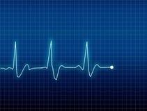 ECG. Electrocardiogram curve medical illustration Royalty Free Stock Image