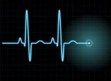 ECG Stock Photography