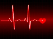 ECG illustration stock
