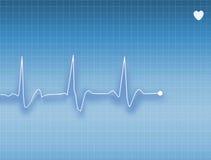 ECG. Electrocardiogram of a healthy person Stock Image