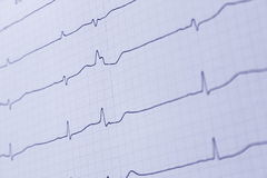 Ecg. Beating of the heart-ecg royalty free stock photos