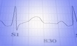 ECG. Close up of ecg graph electrocardiograph heartbeat pulse royalty free stock photo