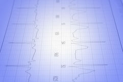ECG. Close up of ecg graph electrocardiograph heartbeat pulse royalty free stock images