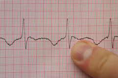 ECG #3. Finger pointing at ECG graph royalty free stock images