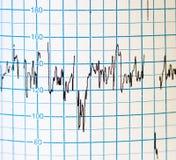 ECG Imagens de Stock