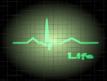 ECG. Of a normal life Royalty Free Stock Photography