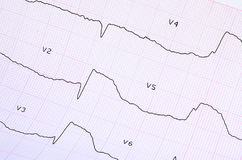 ECG with acute period of large-focal widespread anterior myocardial infarction. Emergency cardiology and intensive care. ECG with acute period of large-focal Royalty Free Stock Images