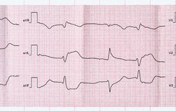 ECG with acute period macrofocal myocardial infarction and vent Royalty Free Stock Photos