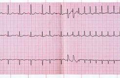 ECG avec l'extrasystole supraventriculaire et le paroxysme court de la fibrillation auriculaire Images stock