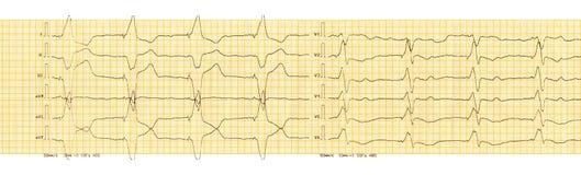 ECG avec le rythme de la stimulation ventriculaire de stimulateur artificiel Images stock
