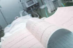ECG on the background of lying patient Royalty Free Stock Image