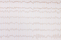 ECG background. Paper ECG graph with heartbeat pulse background royalty free stock photography
