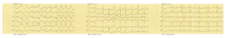 ECG-band met paroxisme van atrial fibrillatie en restauratie van sinusritme royalty-vrije illustratie