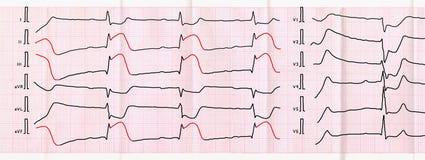 ECG-Band mit schärfstem Zeitraum des macrofocal hinteren diaphragmatischen Myokardinfarkts Lizenzfreie Stockfotos