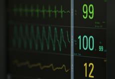ECG-bildskärms data Fotografering för Bildbyråer