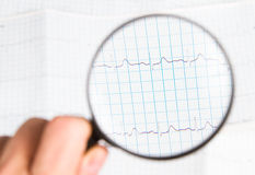 ECG Chart. Background and lenses royalty free stock photography