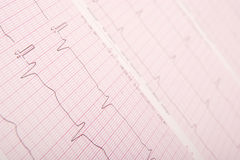 ECG chart (ECG results) Royalty Free Stock Photography
