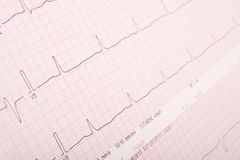 ECG chart (ECG results) Stock Image