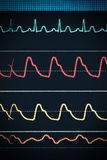 ECG chart on the monitor around the clock surveillance Royalty Free Stock Photos