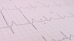 Ecg close up. Close up of ECG graph (electrocardiograph