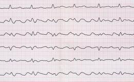 ECG com paroxysmo corrigem o formulário da vibração atrial com atrioventr Foto de Stock