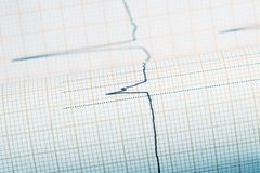 ECG complex line on the plotting paper Royalty Free Stock Images