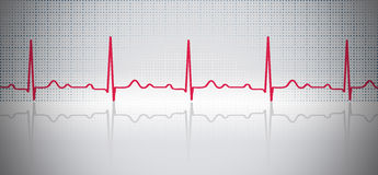 ECG. Curved lines on paper. Royalty Free Stock Images