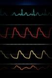 ECG curves on the heart monitor.  stock photos