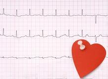 ECG, détail d'électrocardiogramme, concept sain de coeur etc. avec le SM Images libres de droits