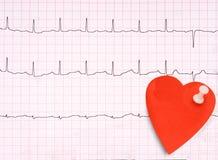 ECG, détail d'électrocardiogramme, concept sain de coeur etc. avec le SM Images stock