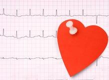 ECG, détail d'électrocardiogramme, concept sain de coeur etc. avec le St Images stock