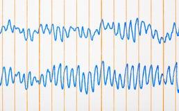Ecg d'électrocardiogramme Photo stock