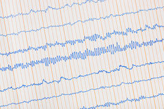 Ecg d'électrocardiogramme Images stock