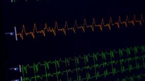 Ecg de medición médico del monitor de corazón almacen de video