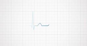 ECG del ritmo del corazón, ECG Pulso del golpe de corazón
