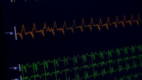 Ecg di misurazione medico del monitor di cuore archivi video