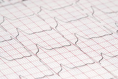 ECG diagram Stock Photography