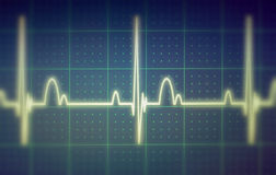 ECG/EKG显示器 免版税库存照片