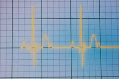 ECG/EKG显示器 图库摄影