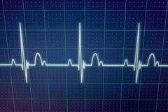 ECG/EKG显示器 免版税库存图片
