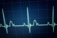 ECG/EKG显示器 免版税图库摄影