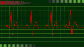 ECG EKG. Electrical activity of the human heart on green graph Royalty Free Stock Photography