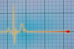 ECG / EKG monitor. Flatline blip on a medical heart monitor ECG / EKG (electrocardiogram) with blue background stock photo