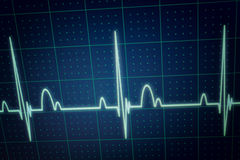 ECG / EKG monitor. Flatline blip on a medical heart monitor ECG / EKG (electrocardiogram) with blue background royalty free stock photography