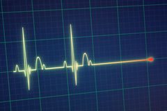 ECG / EKG monitor. Flatline blip on a medical heart monitor ECG / EKG (electrocardiogram) with blue background stock photos