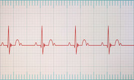 ECG / EKG monitor. Flatline blip on a medical heart monitor ECG / EKG (electrocardiogram) with white background stock photo