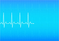 ECG Electrocardiogram,  Stock Photos