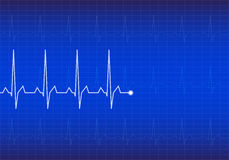 ECG Electrocardiogram,  Royalty Free Stock Image