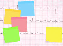 ECG, electrocardiogram detail, healthy heart concept etc with ma Stock Photo
