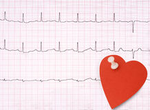ECG, electrocardiogram detail, healthy heart concept etc with sm Royalty Free Stock Images